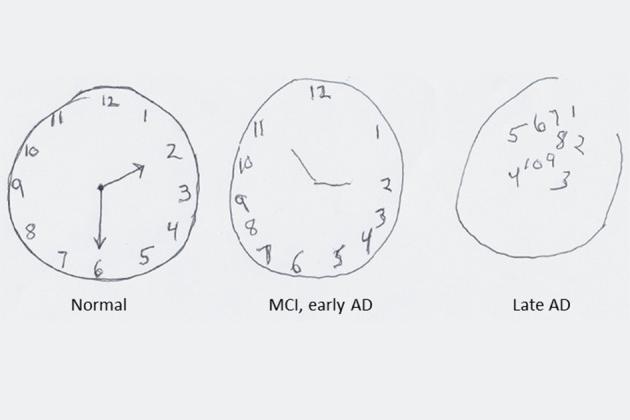 Blog Test Estimulación Profesional Reloj De Del StimulusApp BEedrxoQCW
